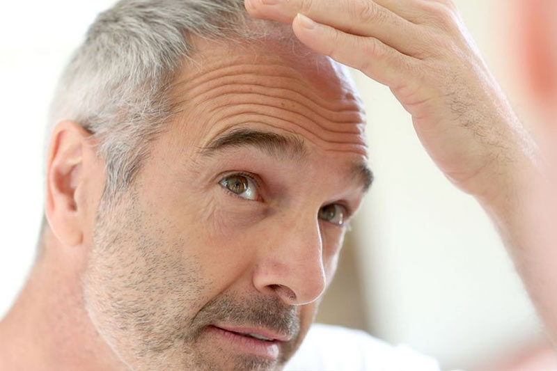 PRP for hair loss vancouver